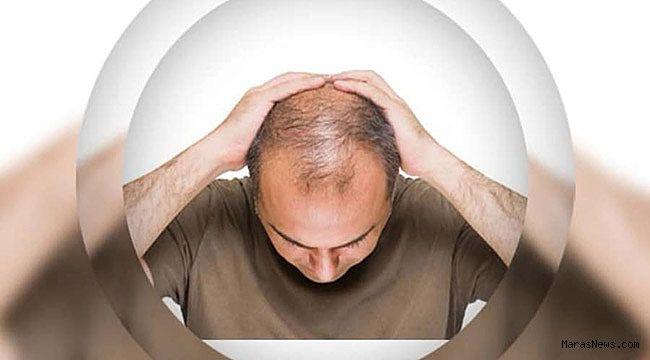 Fast-food beslenme erkek tipi saç dökülmesi nedeni